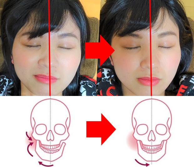 顎関節ビフォーアフター