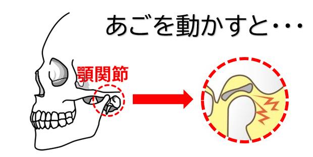 顎関節症の説明