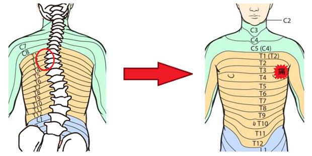 歪みからの肋間神経痛